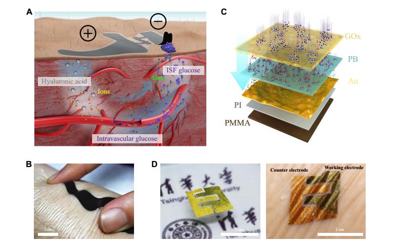清华大学教授:柔性传感技术在医疗领域最新突破