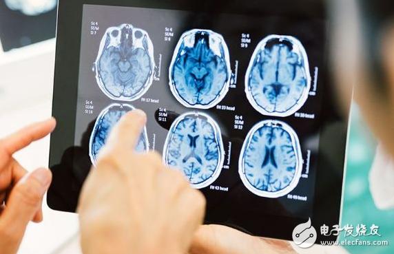 人工智能和机器学习正在医疗领域扎根