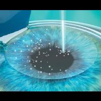 飞秒激光治疗近视更安全吗?
