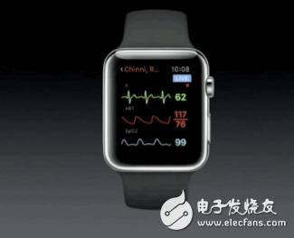 Apple Watch大显身手 以85%准确率检测出糖尿病