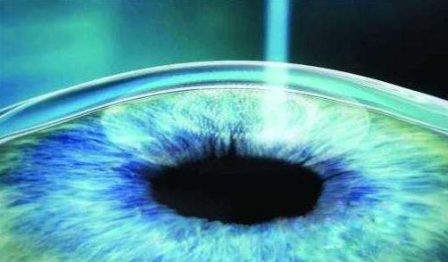 南疆首例飞秒激光近视手术成功_飞秒激光治疗近视手...