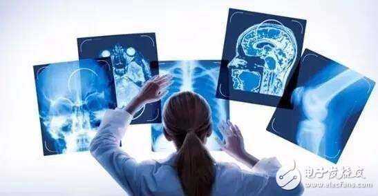 当人工智能遇上医疗影像,中国影像AI的探索与发展