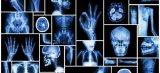 如何利用深度学习修复医疗影像数据集