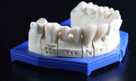 医疗个人化需求高 3D打印技术成长可期