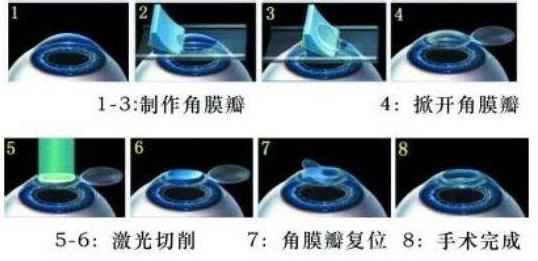 近视激光手术:准分子、飞秒、全飞秒的区别解析