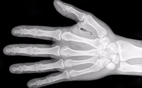 """瑞士一家公司的员工在手中植入芯片,员工通过""""刷手..."""