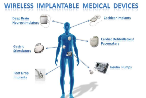 体外无线供电技术 可望推动全新医疗应用