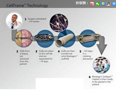 支气管和食道结构图