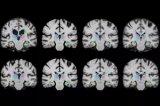 通过使用新的学习技术,将脑部扫描和其他三维图像的配准速度提高1000倍以上
