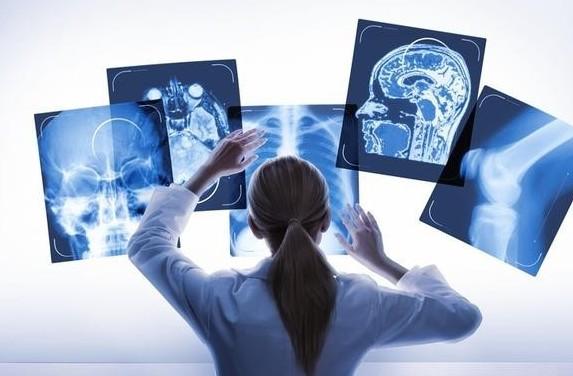 人工智能医学影像联合实验室成立,运用到食管癌早筛试验上