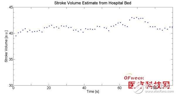 在心搏图测量中加速度传感器有什么作用?