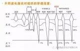 瑞波光电研发的755nm波长在美容行业的应用