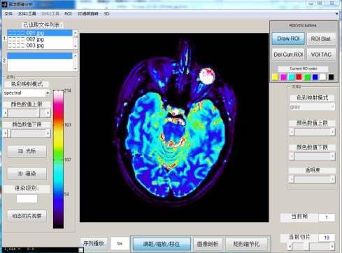 世界医学影像领域迎来了高增长期,到2023年将达到每年20亿美元