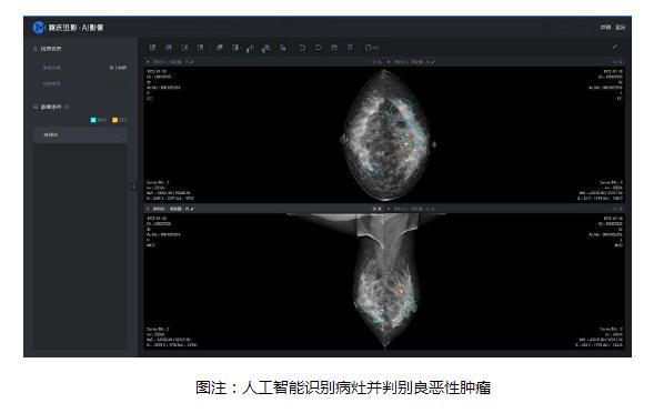 人工智能技术辅助乳腺癌筛查,更快更准的帮到更多人