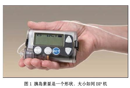 胰岛素注射装置的开发与应用作分析的详细资料免费下载