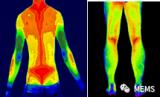 红外热成像技术能看到人体疼痛位置