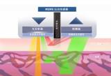 光学心率传感器的主要元件及基本工作原理解析
