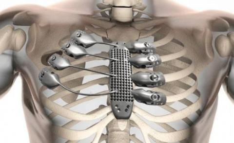 探讨3D打印技术在医疗器械领域的应用