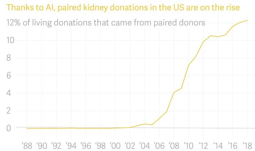 AI技術能改變美國器官捐贈嗎?
