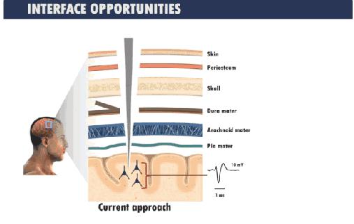 DARPA专注于无需手术的神经技术研究,让身体健...