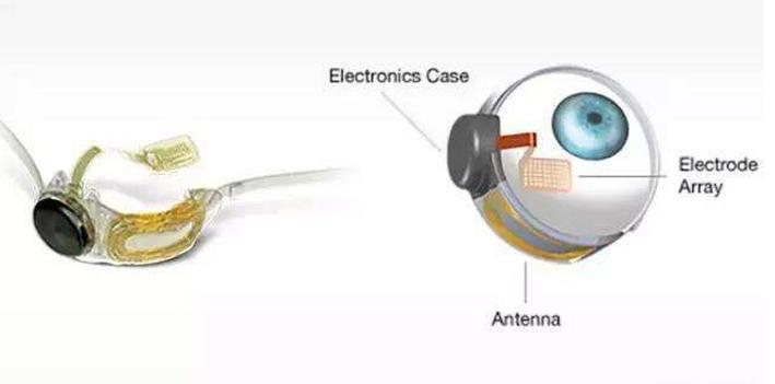 盘点那些具有创意的电子医疗产品