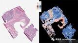Google开发AI诊断分析方式,辨识肿瘤突变成...