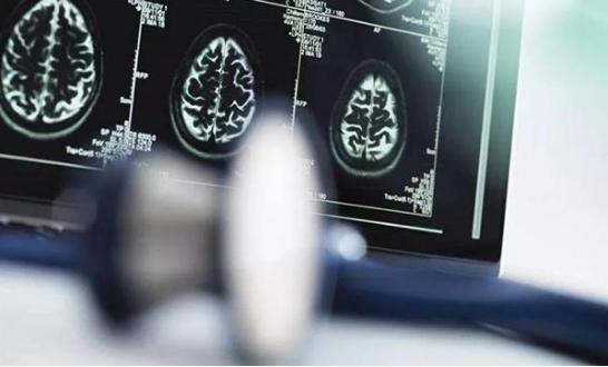 AI医疗目前还处于初级阶段,在众多的技术上面仍然...