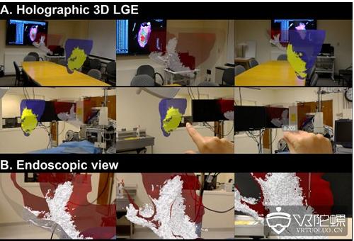 基于HoloLens的AR框架能够对心肌疤痕进行...