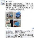 YY CEO李学凌自曝在体内植入芯片