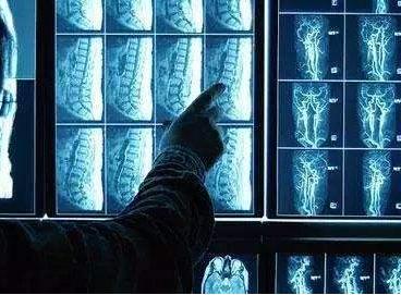 AI医疗影像产业环境尚未成熟 想要开花结果尚需努...
