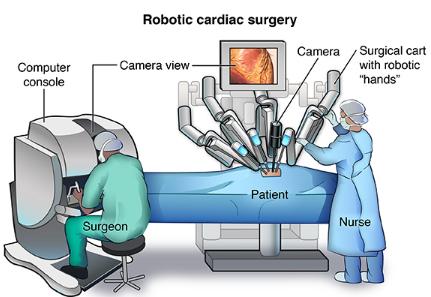 英国首例机器人心瓣修复手术 因机器暴走而失败