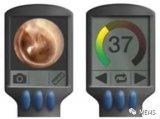 采用空气耦合超声医疗设备,即时诊断中耳感染