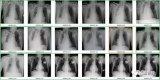 吴恩达的斯坦福团队发布了一个X光诊断算法,基于深...