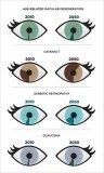 利用深度学习来帮助眼科医生和验光师进一步检测眼部...