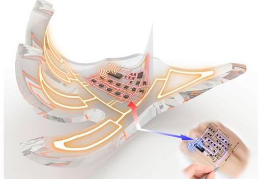 国外研发出可穿戴电子皮肤 能实时反映身体器官健康状况
