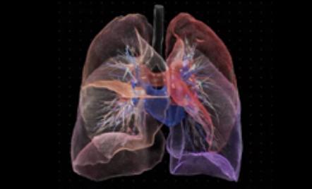 为加快医学影像领域创新 NVIDIA推出迁移学习工具包和AI辅助注释SDK
