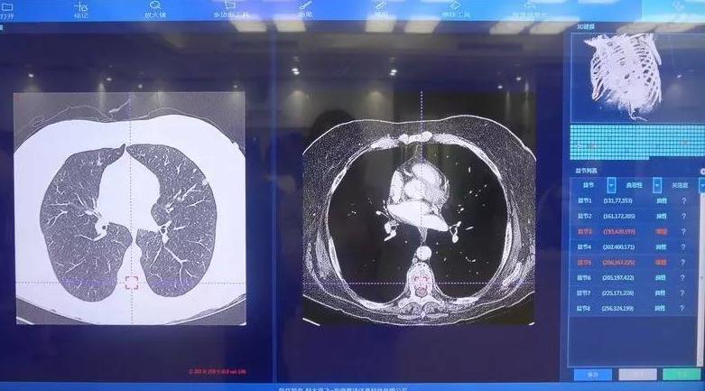 腾讯联合华银健康研发AI病理诊断 开放合作推动医学AI不断创新