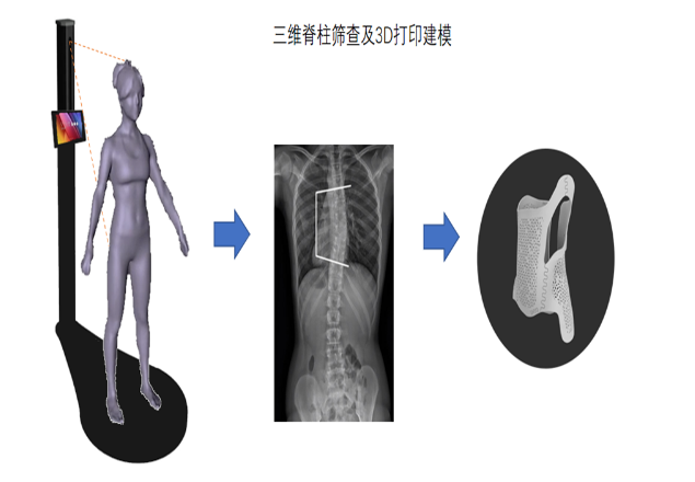 步影医疗聚焦青少年脊柱侧弯病种 实现疾病的早发现...