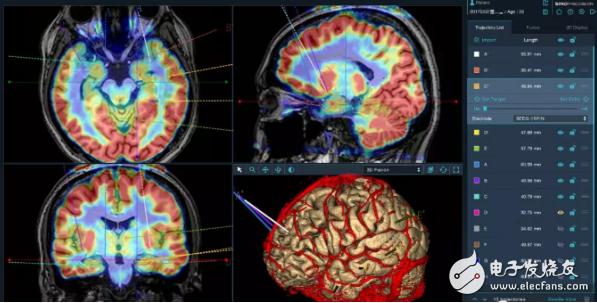 华科精准神经外科手术机器人在精准性和安全性上都具有国际领先优势