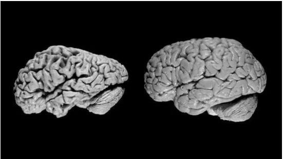 随着人工智能技术的发展 阿尔茨海默病诊断效率不断...