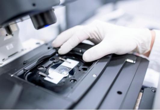 英国研究人员使用人工智能检测卵巢癌患者活检样本中的微小异常细胞簇