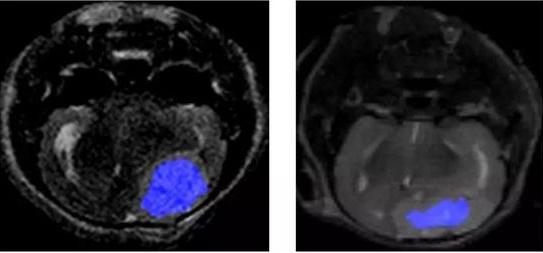 """光学分子影像的出现 让医生能更容易捕捉到肿瘤""""恶魔"""""""