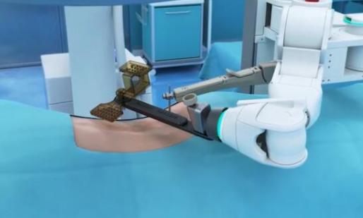 医疗领域是机器人应用的一个重要方向 手术机器人正...
