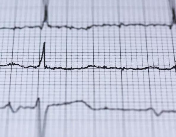 AliveCor利用人工智能识别隐形心脏病患者