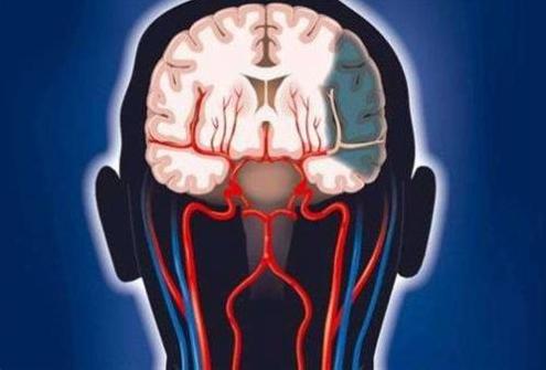 AI医疗公司数坤科技专注心脑血管疾病领域 推动医院的智能升级