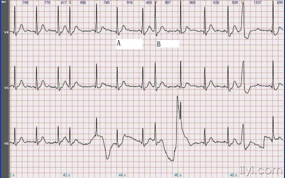 心电信号采集及心电图分类识别的方法研究