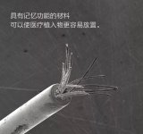镍钛诺制成的电极可能是大脑长期植入物的理想组件