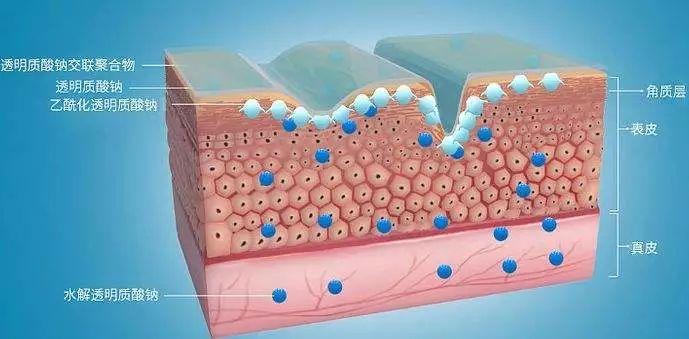 为什么要用透明质酸的8大原因(图3)