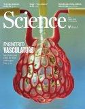 """美科学家""""造""""出人类血管网络,3D打印可植入器官迎来大突破!"""