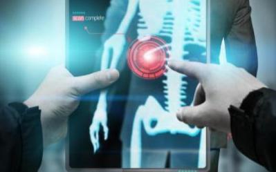 人工智能诊断肺癌超越放射学专家
